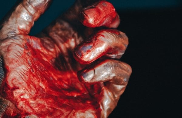 a hand with blood on it